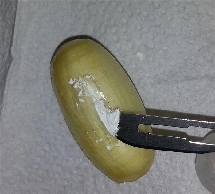 Brezilyalı kuryenin midesinden 59 kapsül kokain çıktı