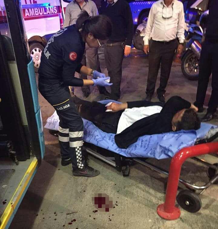 Kavgayı ayırmaya çalışan halk otobüsü şoförü parmağından oldu
