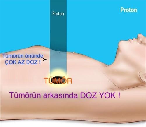 Antalya'da Proton Kanser Tedavi Merkezi kurulsun önerisi