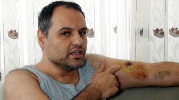 Antalya'da tartıştığı hasta bakıcı tarafından kolundan ısırılan vatandaş hastanelik oldu