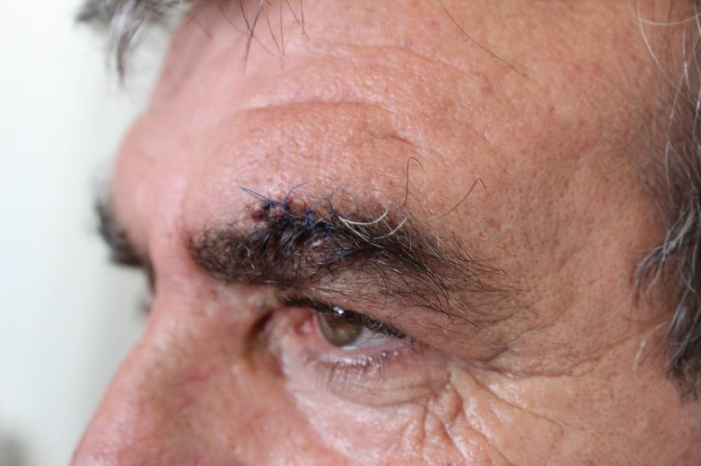 Antalya'da yolcunun saldırdığı şoförün kaşına 4, dudağına 3 dikiş atıldı