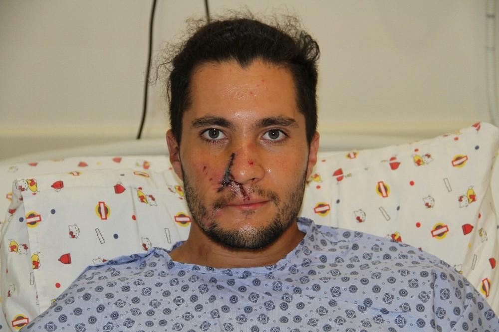 Alanya'da kazada burnu kopan Rus gence kulağından alınan doku ile burun yapıldı