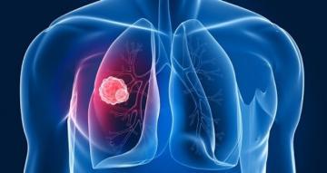 Akciğer Kanseri Nasıl Teşhis Edilir?