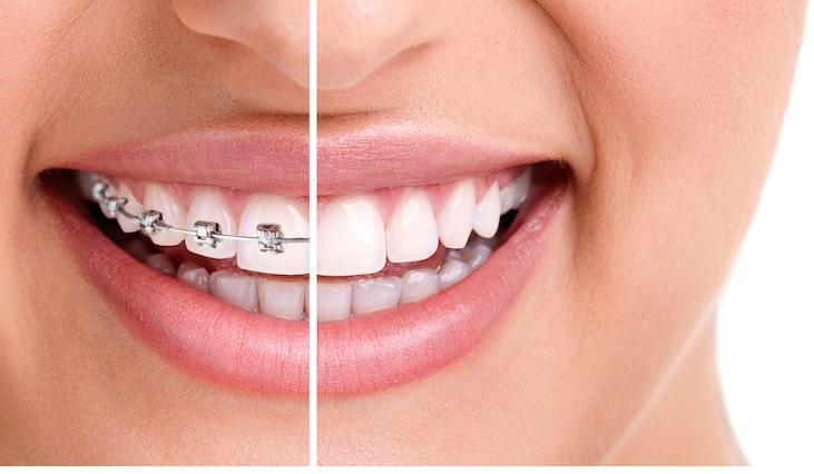 Çarpık dişlere telsiz çözüm!